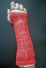 Top of my signed cast.